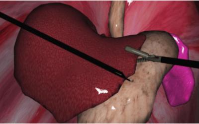 """Avance científico del Hospital Italiano: lanzan un tratamiento cardíaco """"virtual"""""""