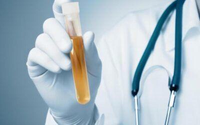 Desarrollan un nuevo test de orina capaz de detectar al 100% el cáncer de vejiga