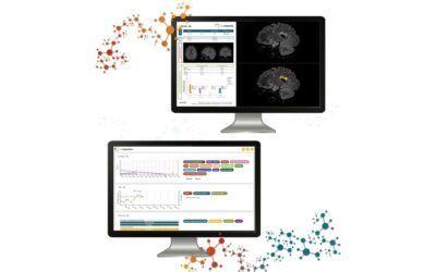Digital health innovation in multiple sclerosis care