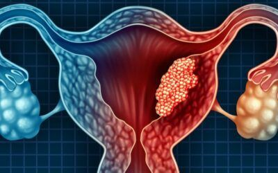 Test could help rule out endometrial cancer in three hours